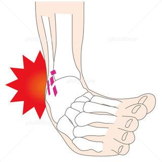 〜足関節捻挫について〜