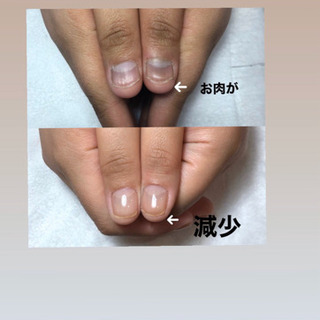 美爪に導く、深爪緩和&自爪育成サロン