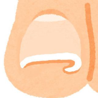 👆巻き爪による痛みや、変形した見た目でお悩みの方、任せて下さい!