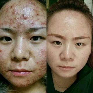 マスクでニキビが悪化するって本当? 顔ニキビの原因と対処法