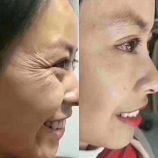 🎊童顔機🥰ハイフより効果高める🎉🎊最新マシンが導入❣️