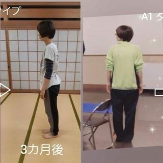 長野市 猫背改善 正しい姿勢で美しく 歩行も美しく