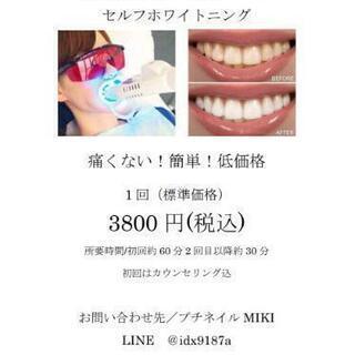 歯のセルフホワイトニング😀2500円キャンペーン中