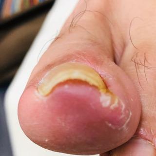 急な巻爪の痛み‼️お任せ下さい❗️