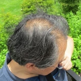 薄毛は一度進行したら止まりません!【発毛育毛専門クリニック】
