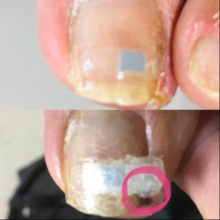 巻爪矯正のプレートが外れた‼️原因は❓