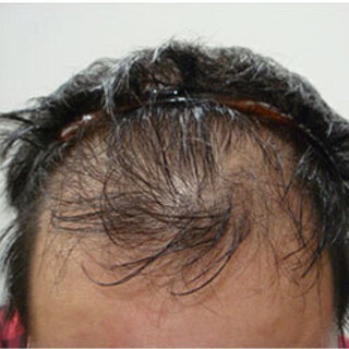 性別年齢関係なく治療することができます!【発毛育毛専門クリニック】