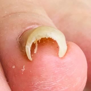 巻爪矯正❗️ピンホール法の施術しました。