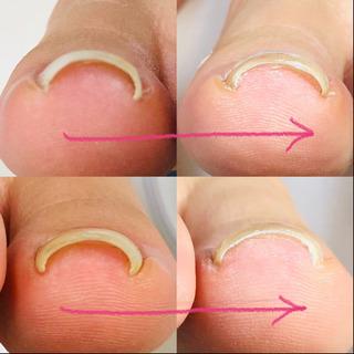 巻爪の痛み、即解消‼️