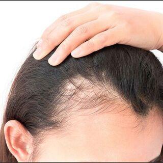 【注目セミナー】抜け毛で悩んでいませんか?遺伝子劣化が原因かもし...