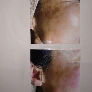 東大宮で!!🐱ハーブピール【肌再生療法】🐱是非!体験してください!