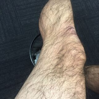 男性の両脚脱毛。モニター募集