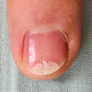 爪が割れてしまったら‼️『割れ爪補強』