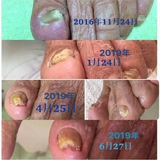 介護予防 爪切り 切り難い爪にお悩みなら一度ご相談下さい。 肥厚...