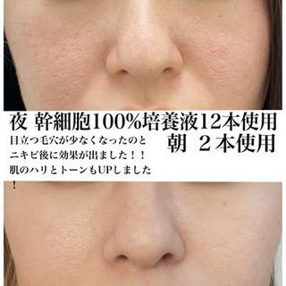 【数量限定☆】高品質100%原液ヒト幹細胞入荷しました!!