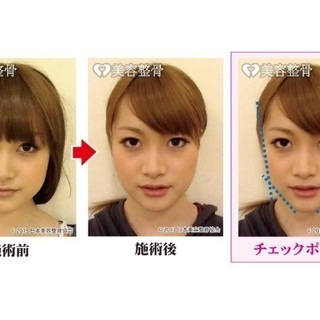 小顔矯正 モニター募集!〜浮腫、たるみ、お顔の左右差〜