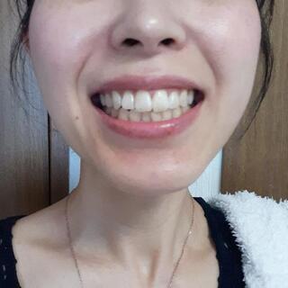 歯のセルフホワイトニング🌟6回18000円→半額❗
