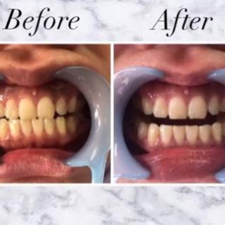 自然な歯の白さへ🦷✨