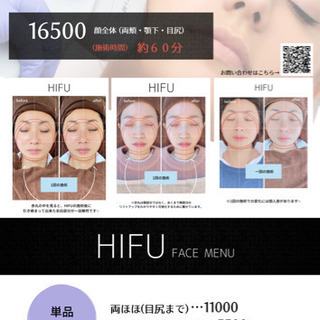 HIFU(ハイフ)導入記念✨