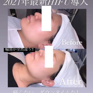 HIFU/脱毛/ハーブピーリング◼️Men's Beauty S...