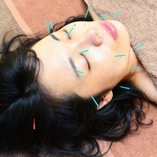 ◆半額キャンペーン!◆この機会に美容鍼を体験してみませんか?