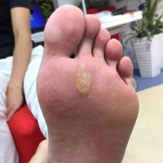 肩こりなど身体に不調をお持ちで、足裏にこんな症状をお持ちの方、必見!