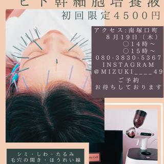 美容鍼×ヒト幹細胞培養液 リフトアップ美肌コース