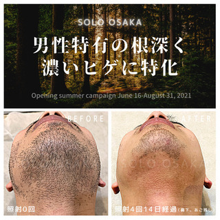 Before▶︎After