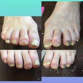 足のお手入れお任せください! 巻いた爪 くい込んで痛い爪 厚くて...
