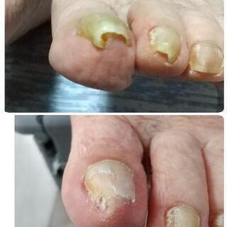 爪切りモニター募集 − 千葉県