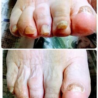 爪切りモニター募集 - 助け合い